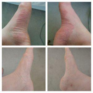 Tedavi Öncesi (üst 2 resim) Tedavi Sonrası (Alt 2 resim)