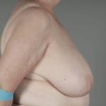 Göğüs Küçültme Öncesi