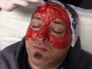 Erkeklerde GEST Maskesi